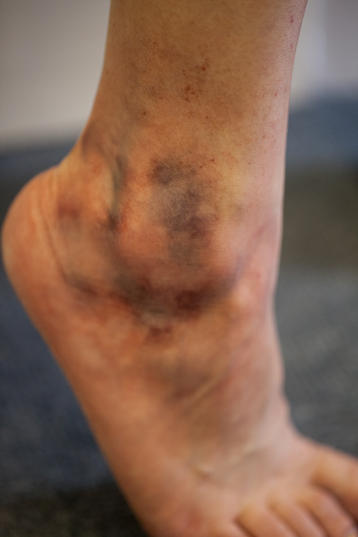 Detailed Ankle Bruise - Sfx